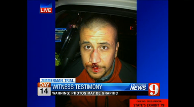 George Zimmerman, minutes after being attacked by Trayvon Martin