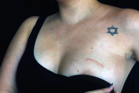 Breast cancer jews israel brca mutations tattoos for Female nipple tattoos