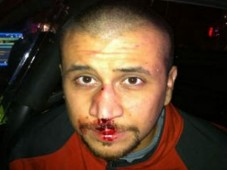 George Zimmerman bloody nose