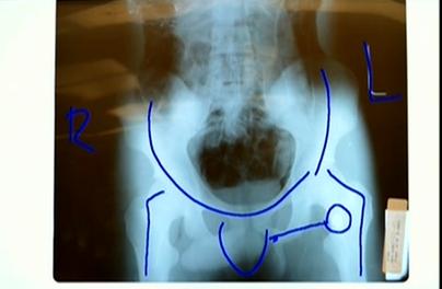 "(""Lollipop"" shows path and end of left leg bullet.)"