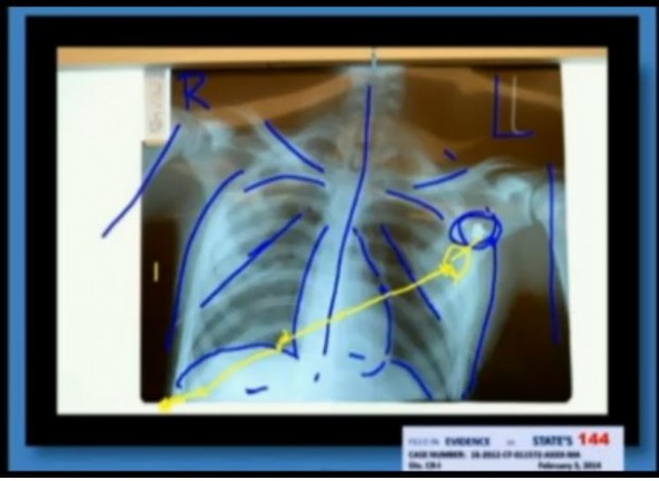 Michael-Dunn-Trial-Medical-Examiner-Testifying-as-to-bullet-path-upper-chest-606x442
