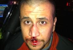 George Zimmerman injuries