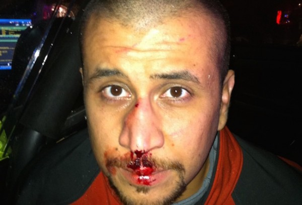 George Zimmerman injuries