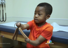 eight 8 year old boy receives double hand transplant surgical first feel good story zion philadelphia
