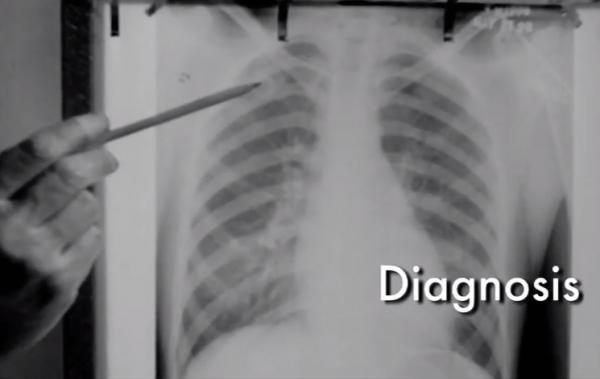 LI #20 Tuberculosis