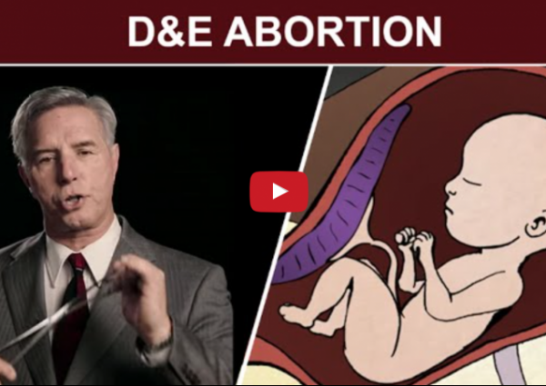 Is This Video Changing People's Minds About Abortion? pro-life pro-choice abortion procudure what happens in an abortion truth doctor