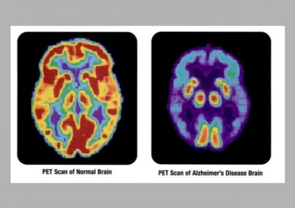alzheimer's disease cure clinical trial abnormal brain PET scan advancement treatment