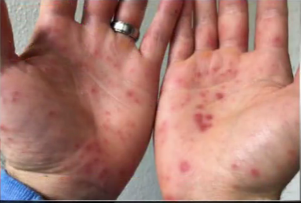 http://kron4.com/2016/10/26/video-hand-foot-and-mouth-disease-popping ...Hand Foot And Mouth Disease On Feet